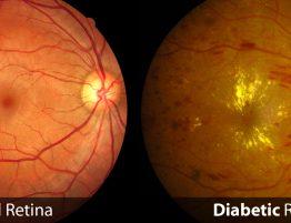 Ochiul diabetic